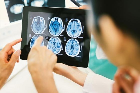 Curso virtual Infecciones del Sistema Nervioso Central